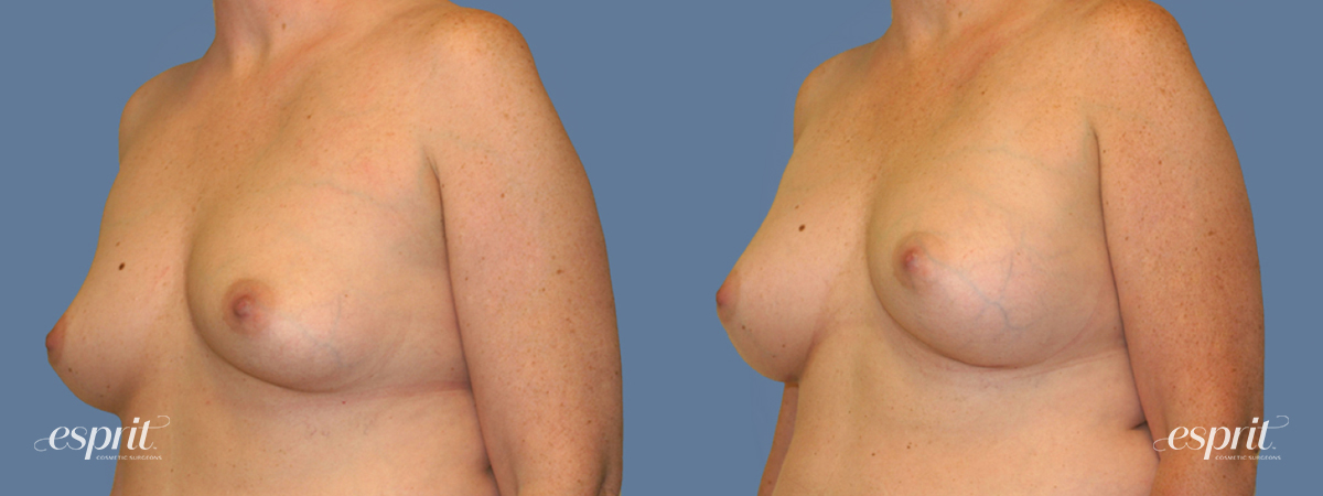 Case 1266 Before and After Left Oblique View