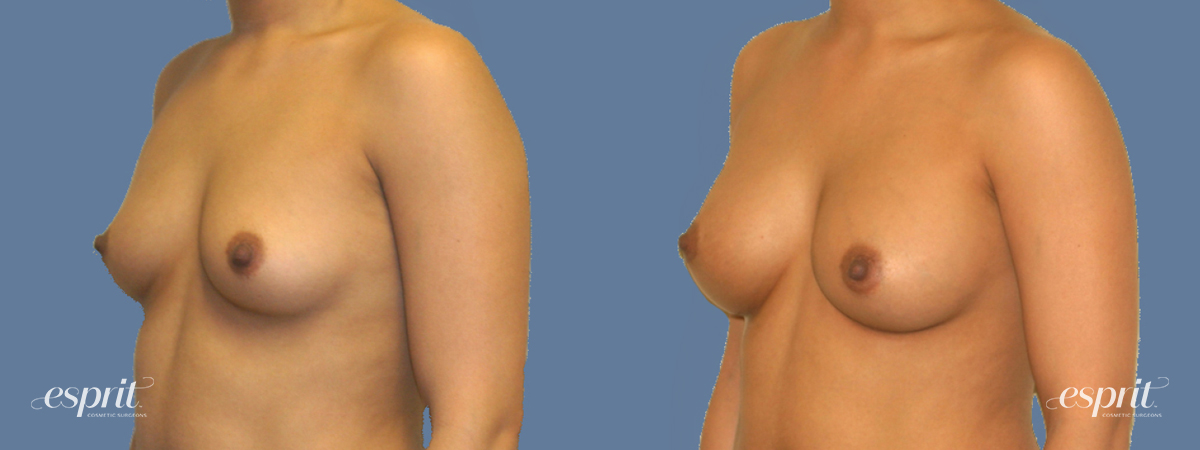 Case 1271 Before and After Left Oblique View