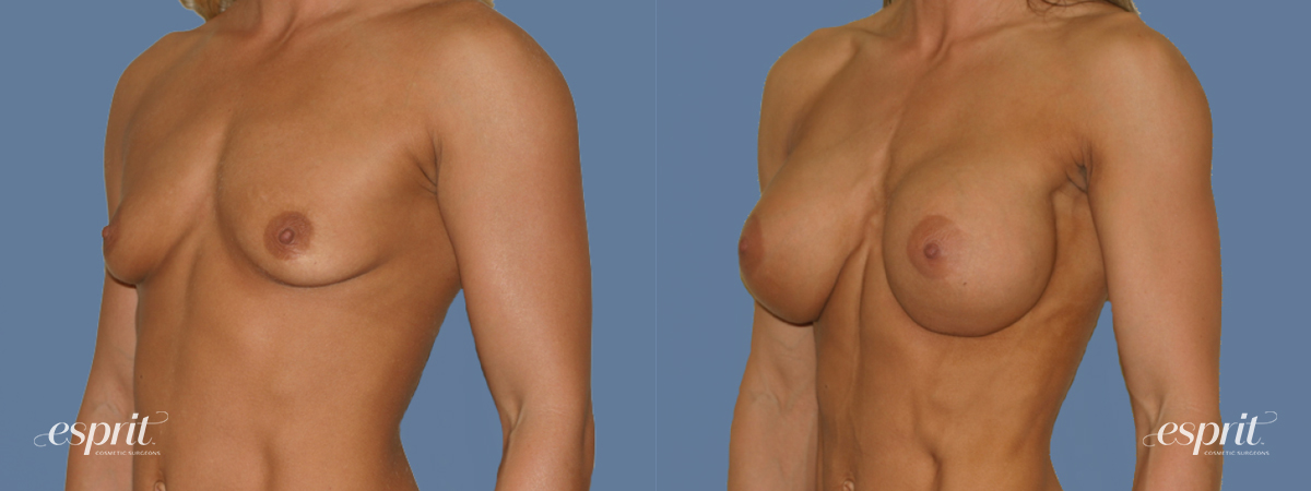 Case 1272 Before and After Left Oblique View