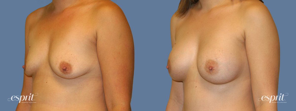 Case 1273 Before and After Left Oblique View
