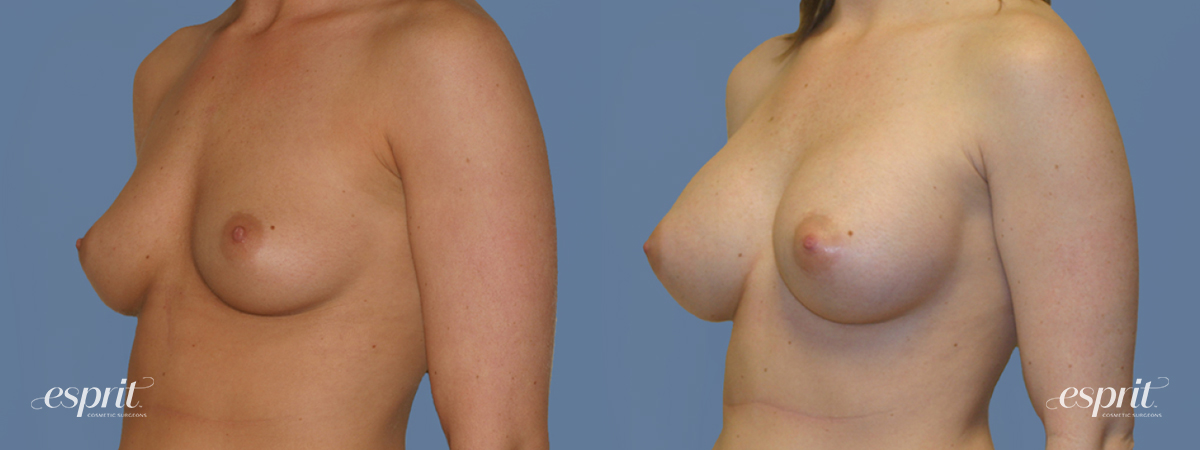Case 1277 Before and After Left Oblique View