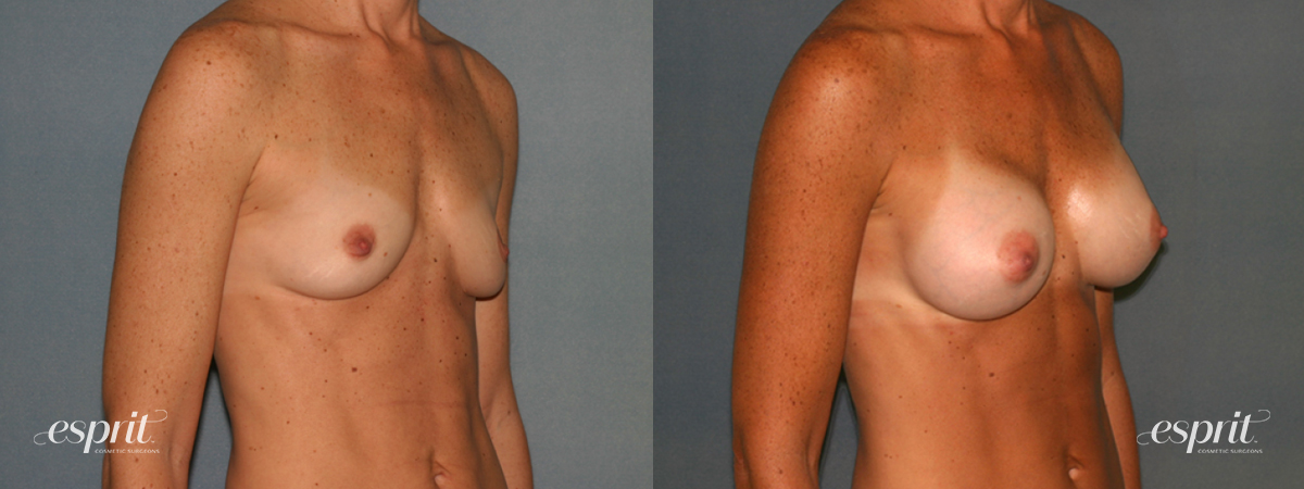 Case 1279 Before and After Right Oblique View