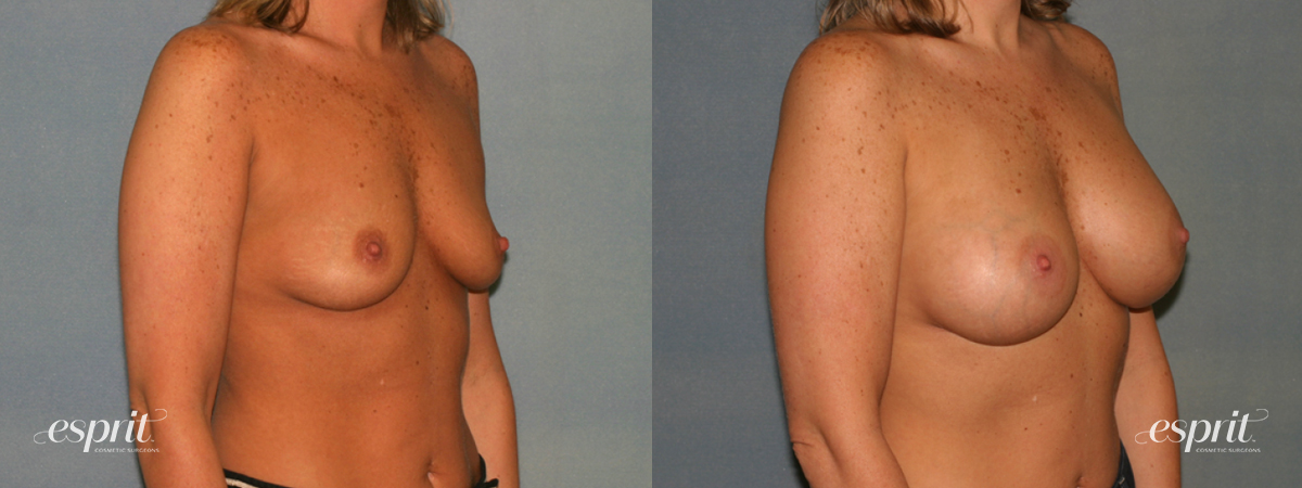 Case 1280 Before and After Right Oblique View