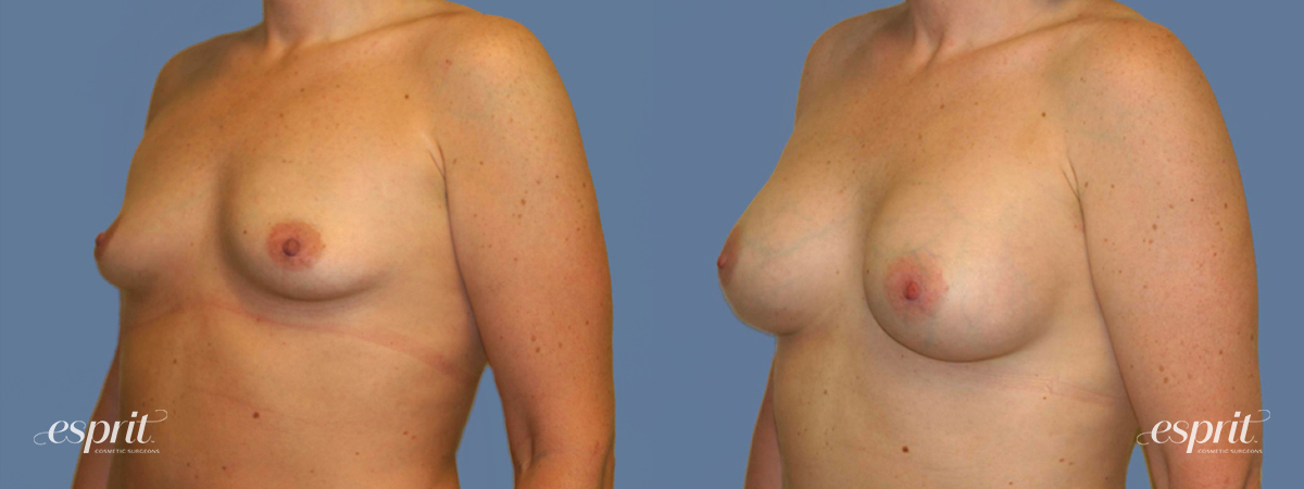 Case 1282 Before and After Left Oblique View