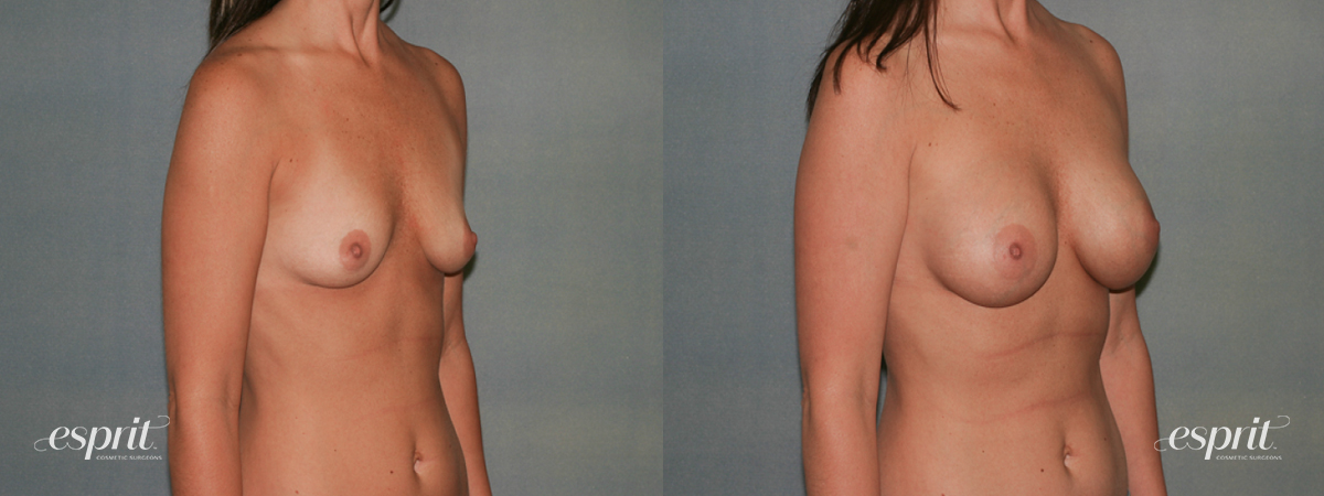 Case 1337 Before and After Right Oblique View