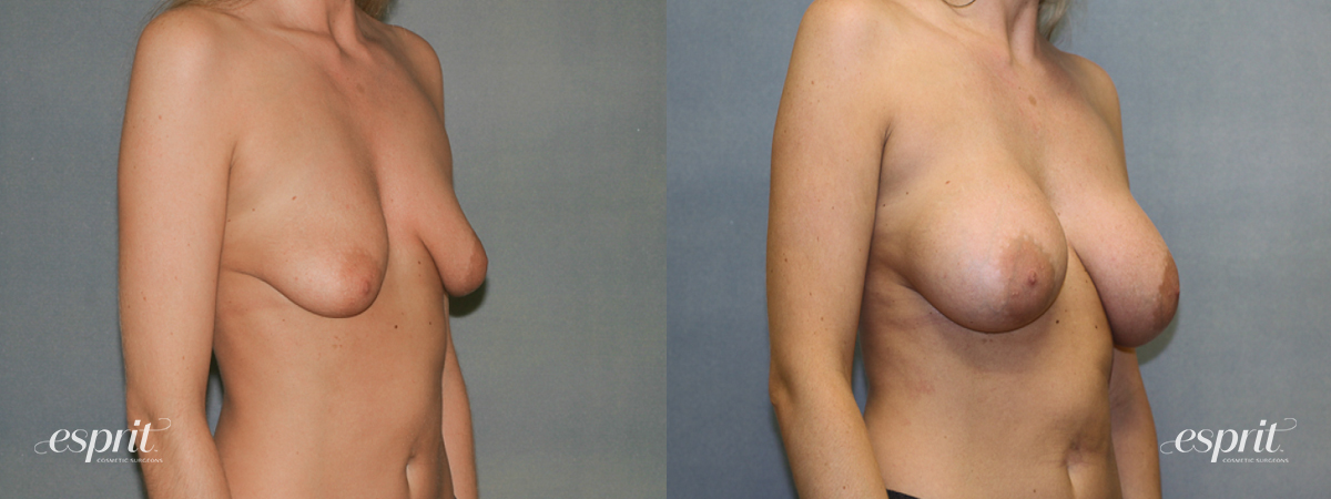 Case 1339 Before and After Right Oblique View