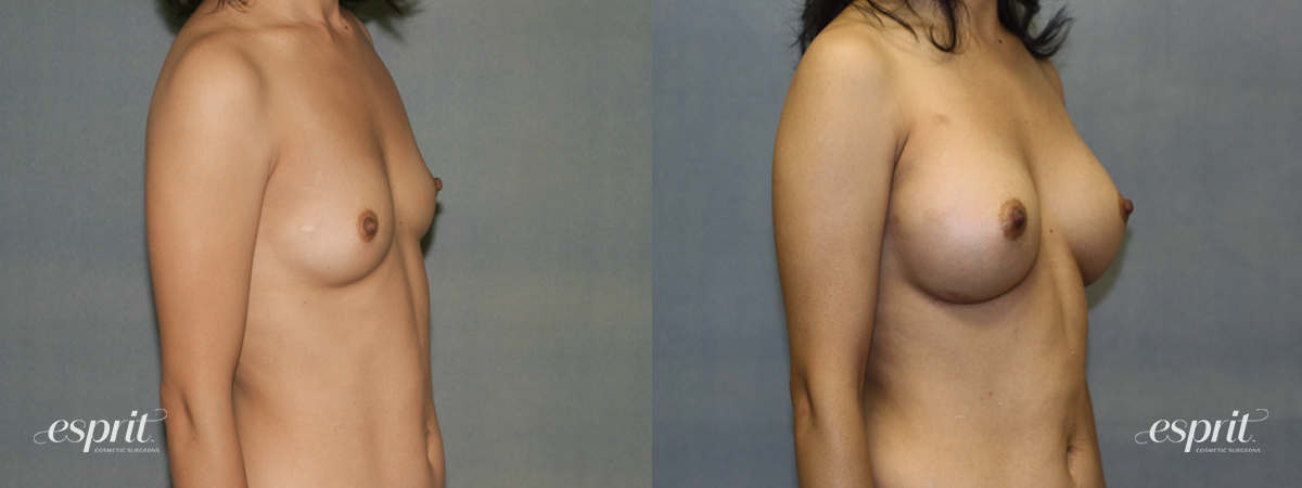 Case 1340 Before and After Right Oblique View