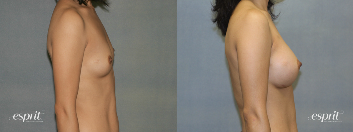 Case 1340 Before and After Right Side View