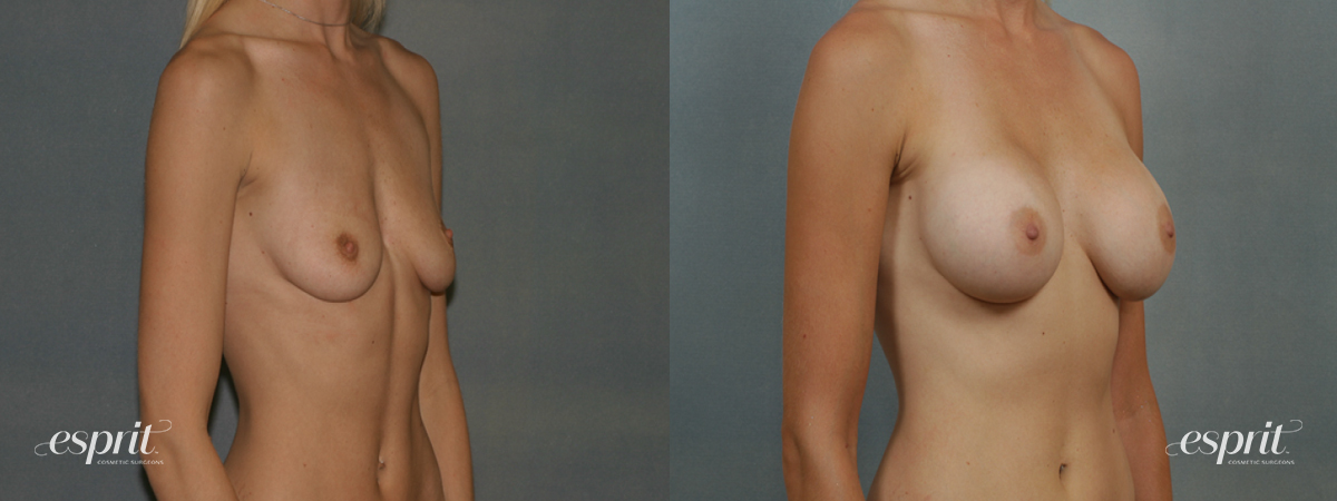 Case 1341 Before and After Right Oblique View