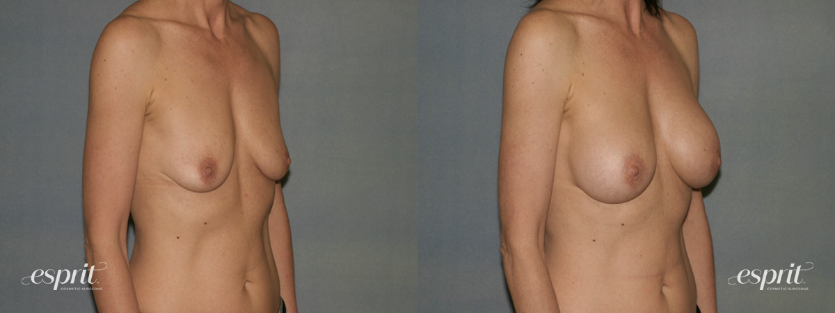 Case 1344 Before and After Right Oblique View