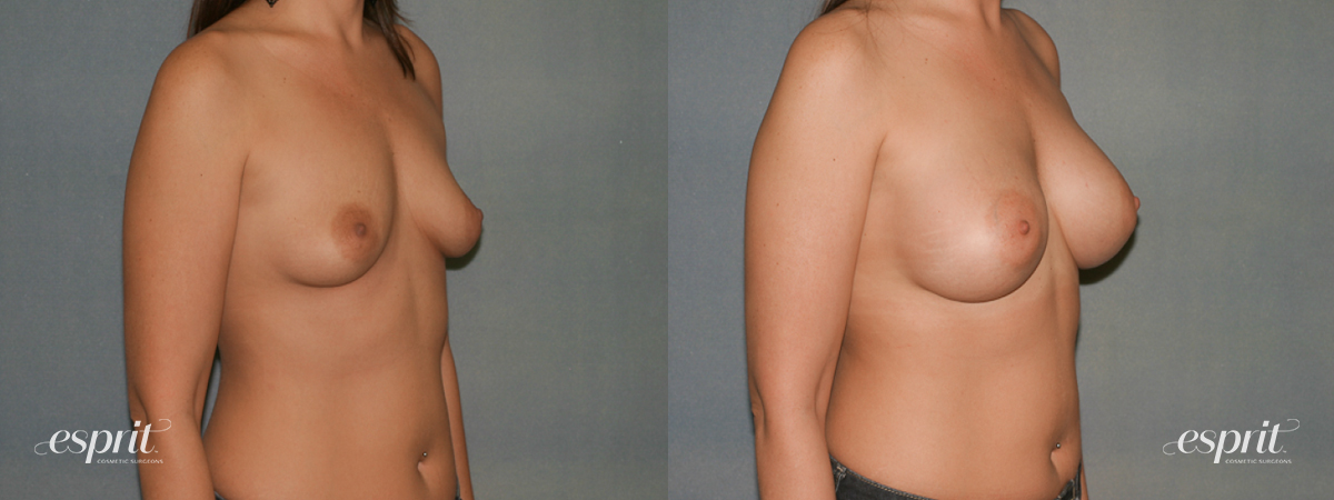 Case 1346 Before and After Right Oblique View
