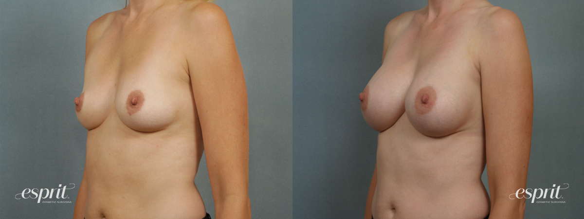 Case 1348 Before and After Left Oblique View