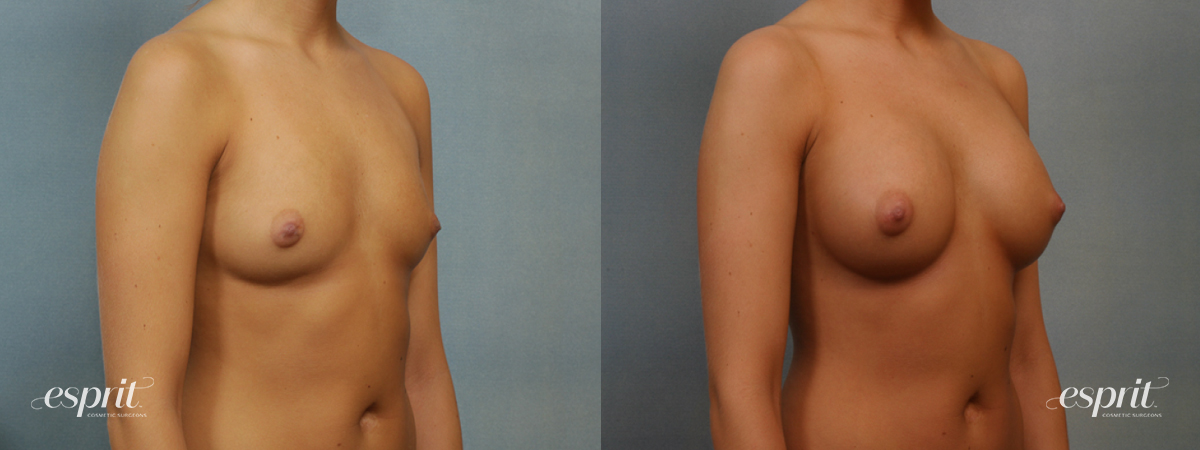 Case 1351 Before and After Right Oblique View