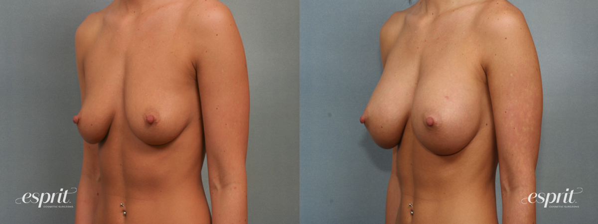Case 1383 Before and After Left Oblique View