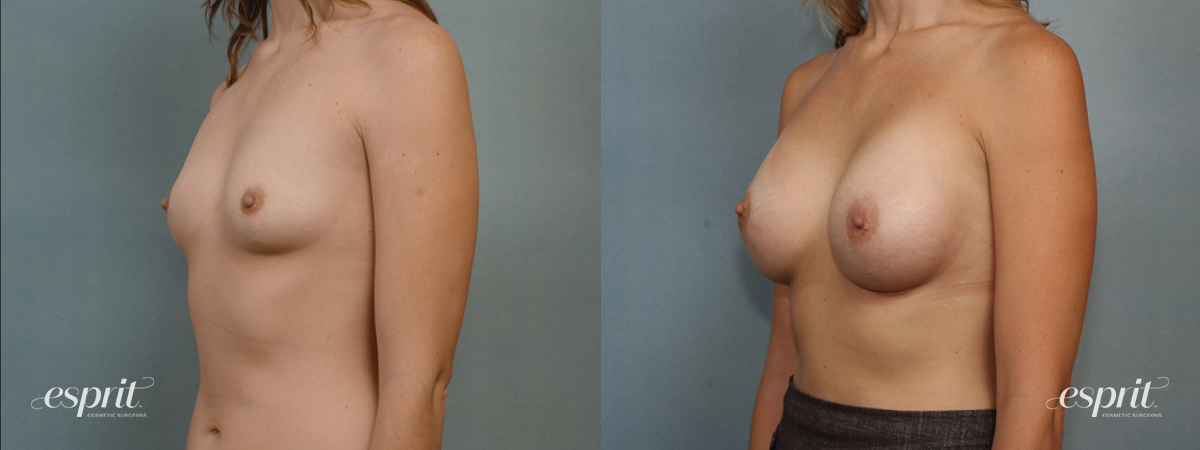 Case 1391 Before and After Left Oblique View