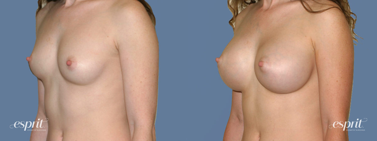 Case 1393 Before and After Left Oblique View