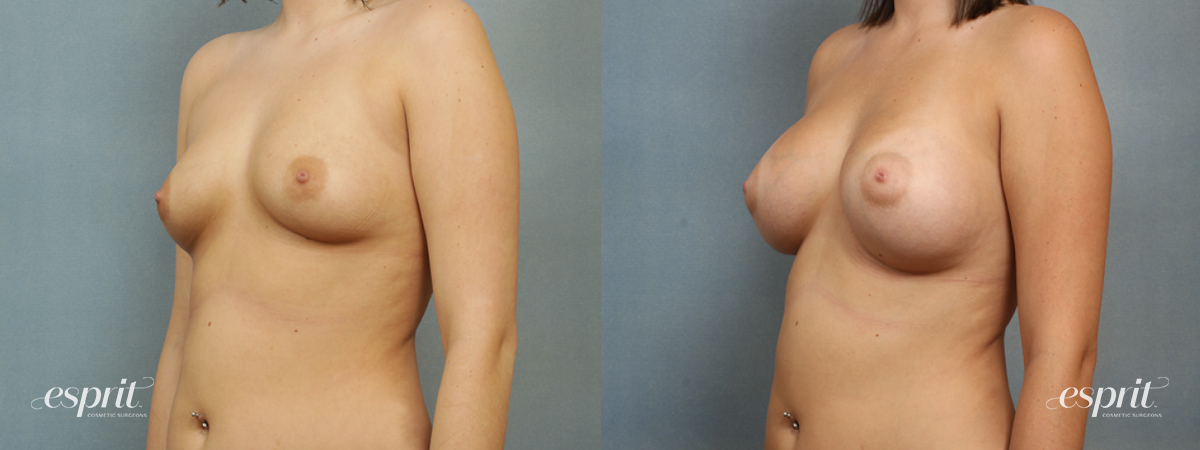 Case 1397 Before and After Left Oblique View