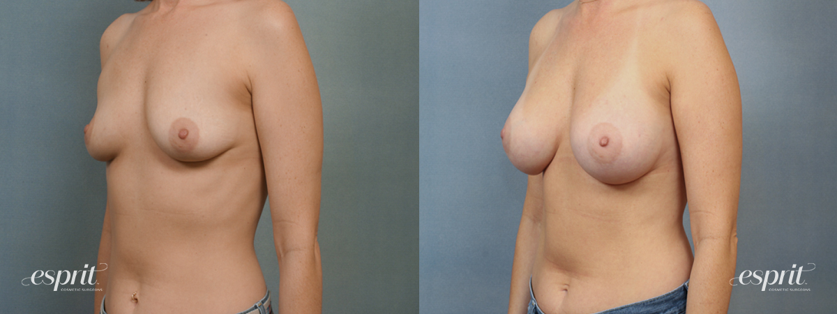 Case 1406 Before and After Left Oblique View