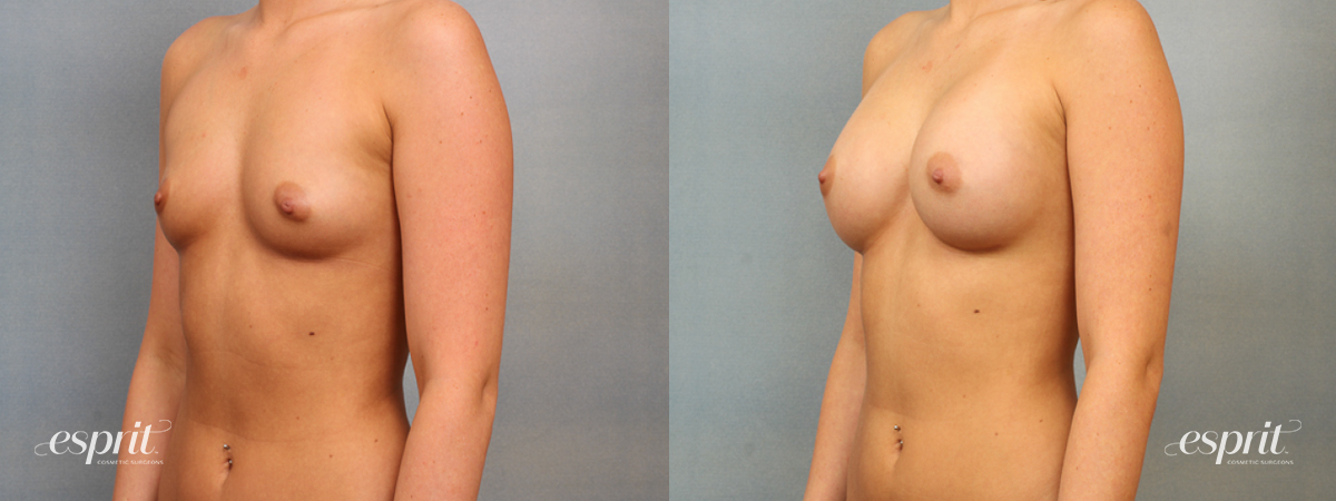 Case 1408 Before and After Left Oblique View