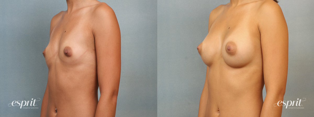 Case 1411 Before and After Left Oblique View
