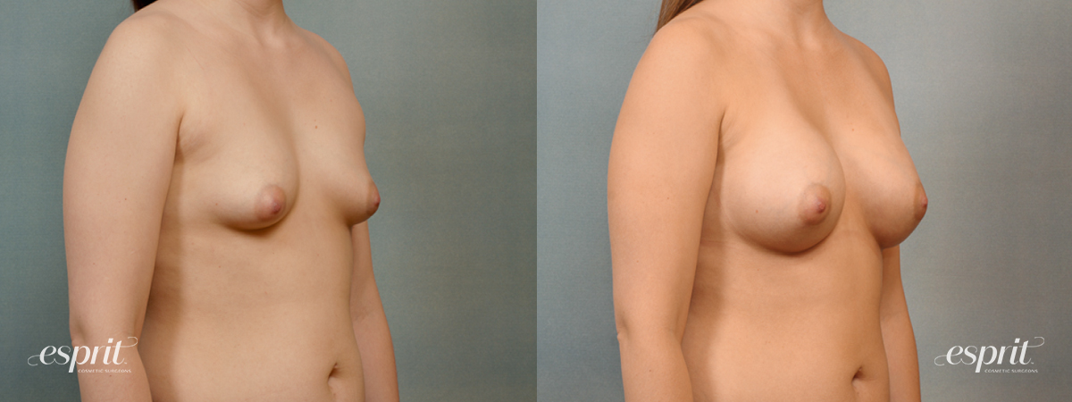 Case 1412 Before and After Right Oblique View