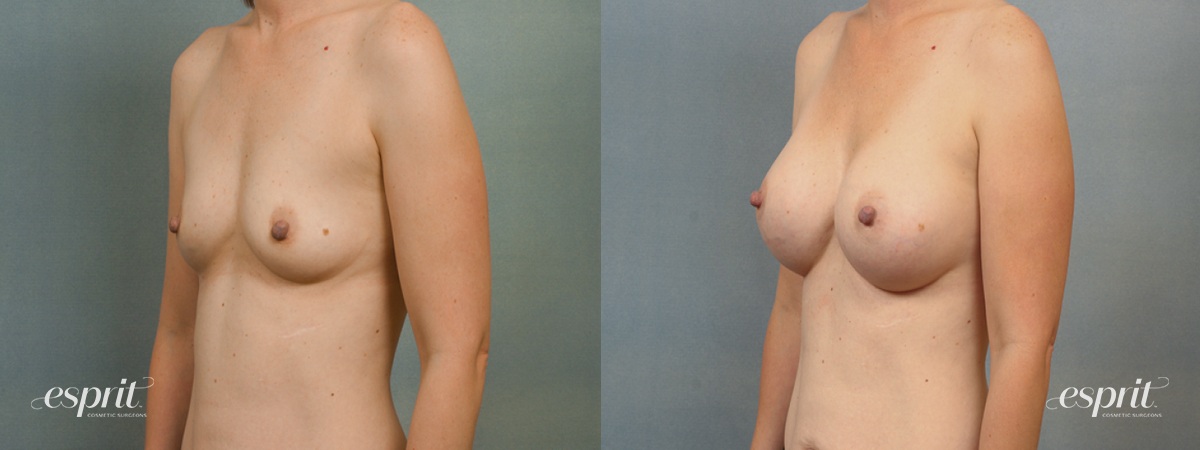 Case 1413 Before and After Left Oblique View