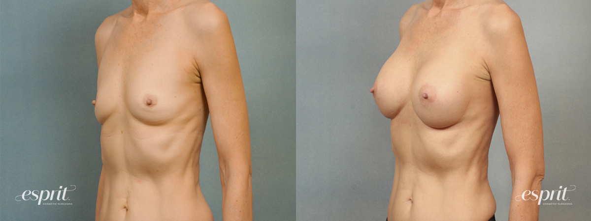 Case 1416 Before and After Left Oblique View