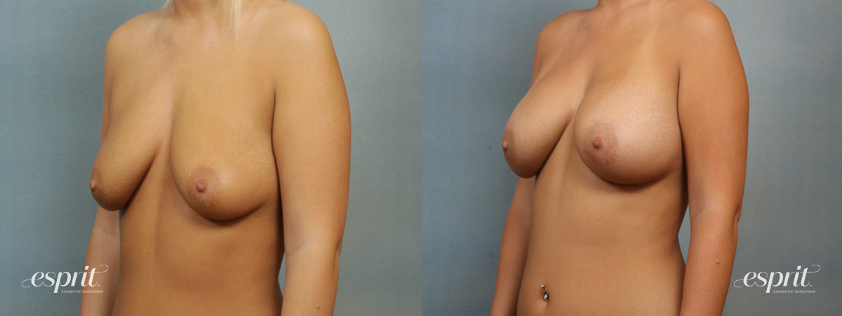 Case 1417 Before and After Left Oblique View