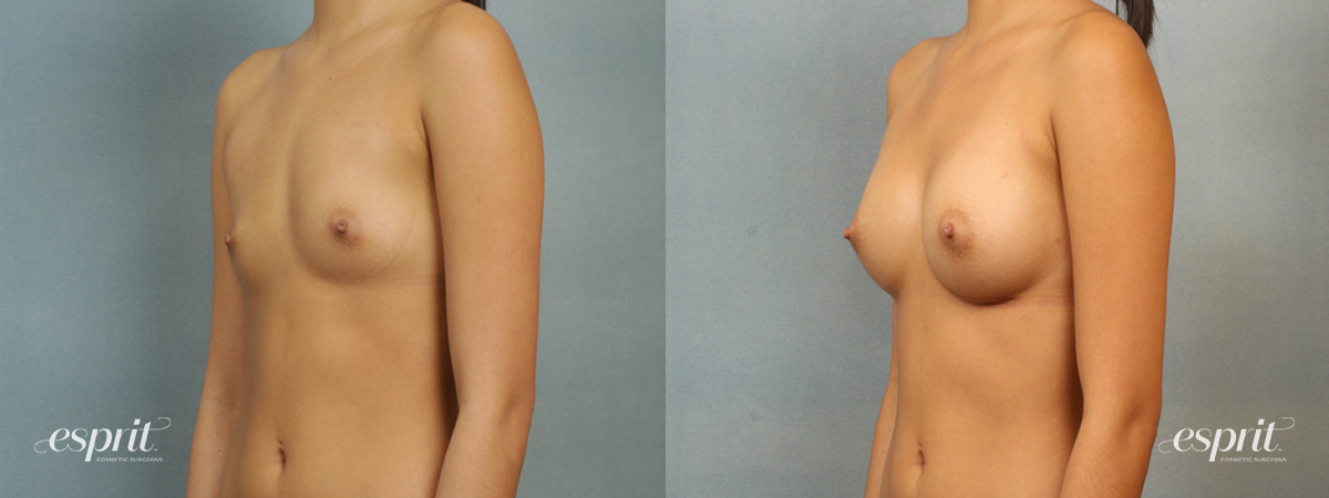 Case 1418 Before and After Left Oblique View