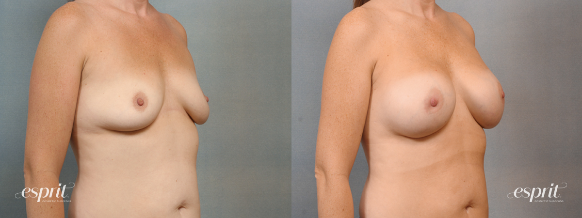 Case 1421 Before and After Right Oblique View