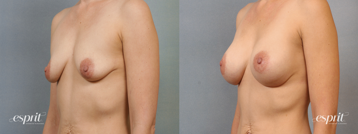 Case 1426 Before and After Left Oblique View