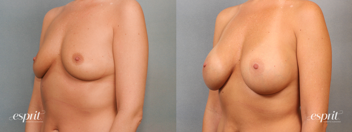 Case 1427 Before and After Left Oblique View