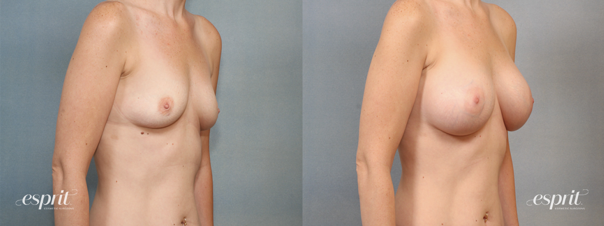 Case 1430 Before and After Right Oblique View