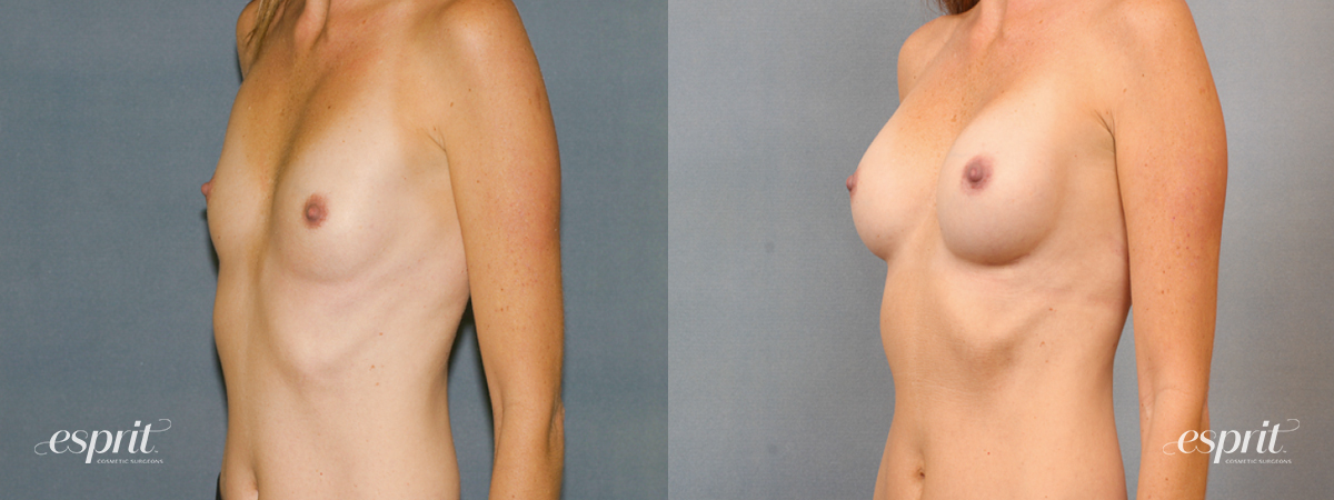 Case 1437 Before and After Left Oblique View