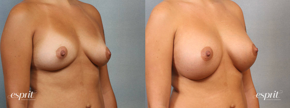 Case 1440 Before and After Right Oblique View