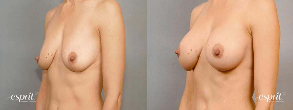 Case 1450 Before and After Left Oblique View