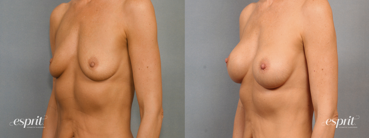 Case 1453 Before and After Left Oblique View