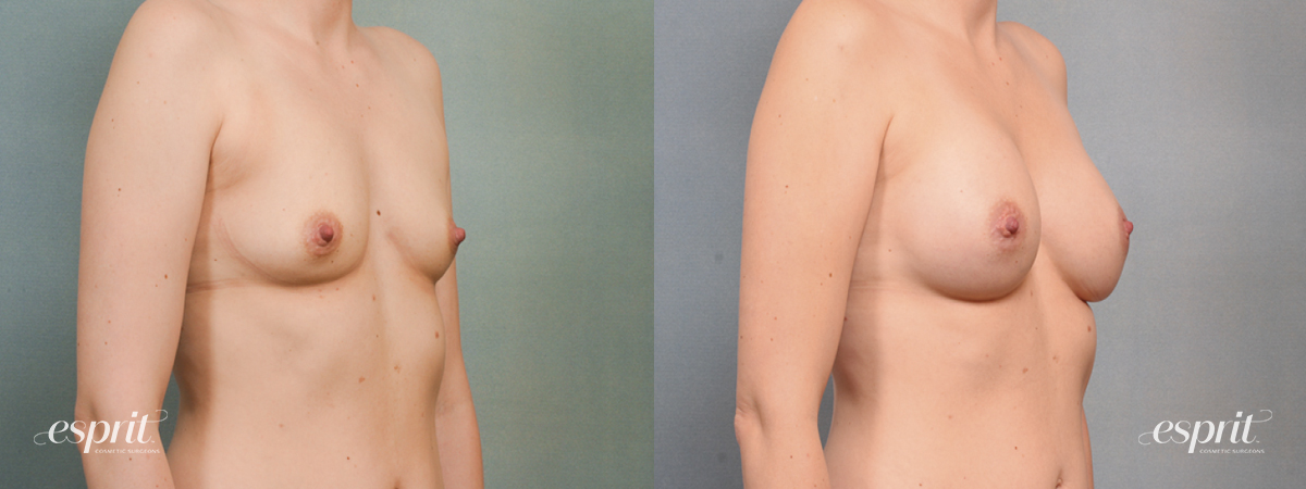 Case 1456 Before and After Right Oblique View