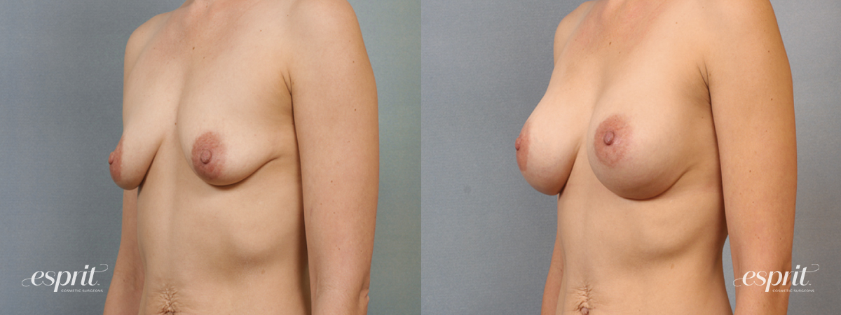 Case 1463 Before and After Left Oblique Side View