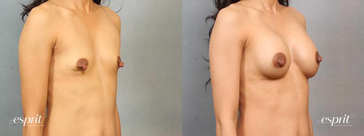 Case 1487 Before and After Right Oblique View