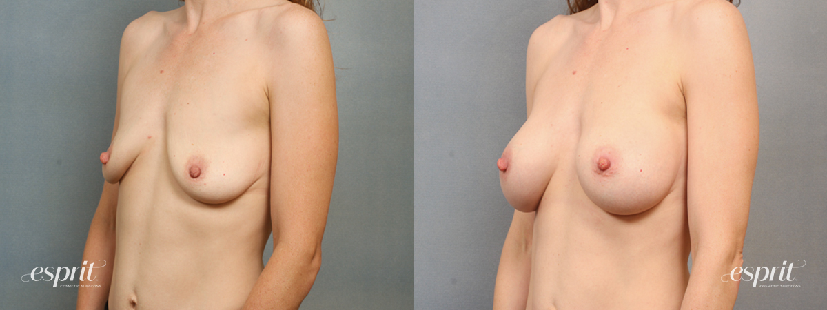 Case 1488 Before and After Left Oblique View