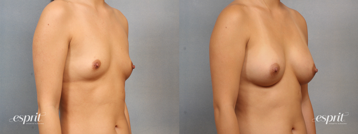 Case 1500 Before and After Right Oblique View