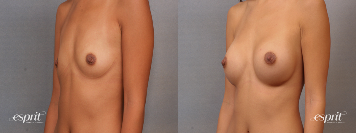 Case 1606 Before and After Left Oblique View