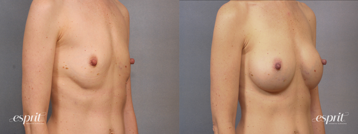 Case 1620 Before and After Right Oblique View