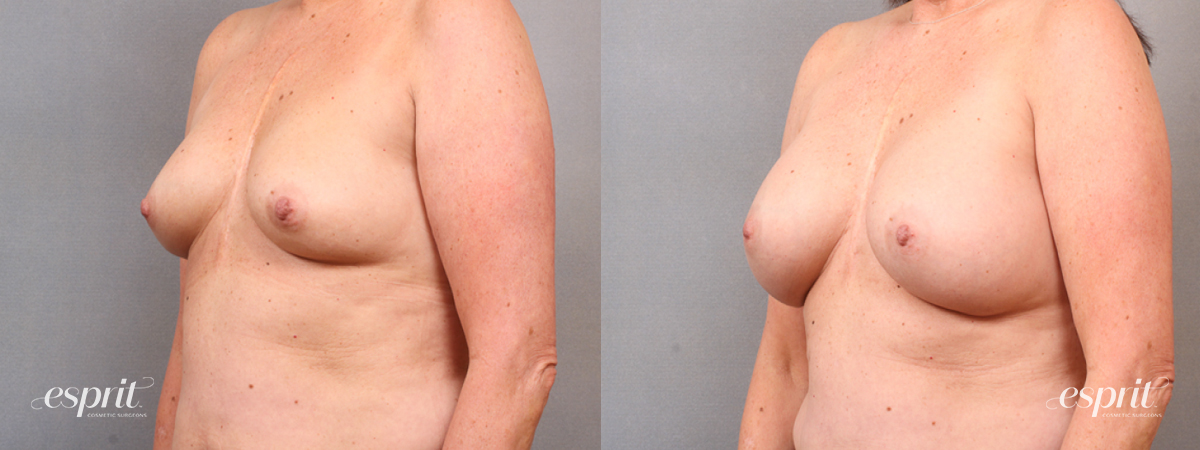 Case 1667 Before and After Left Oblique View