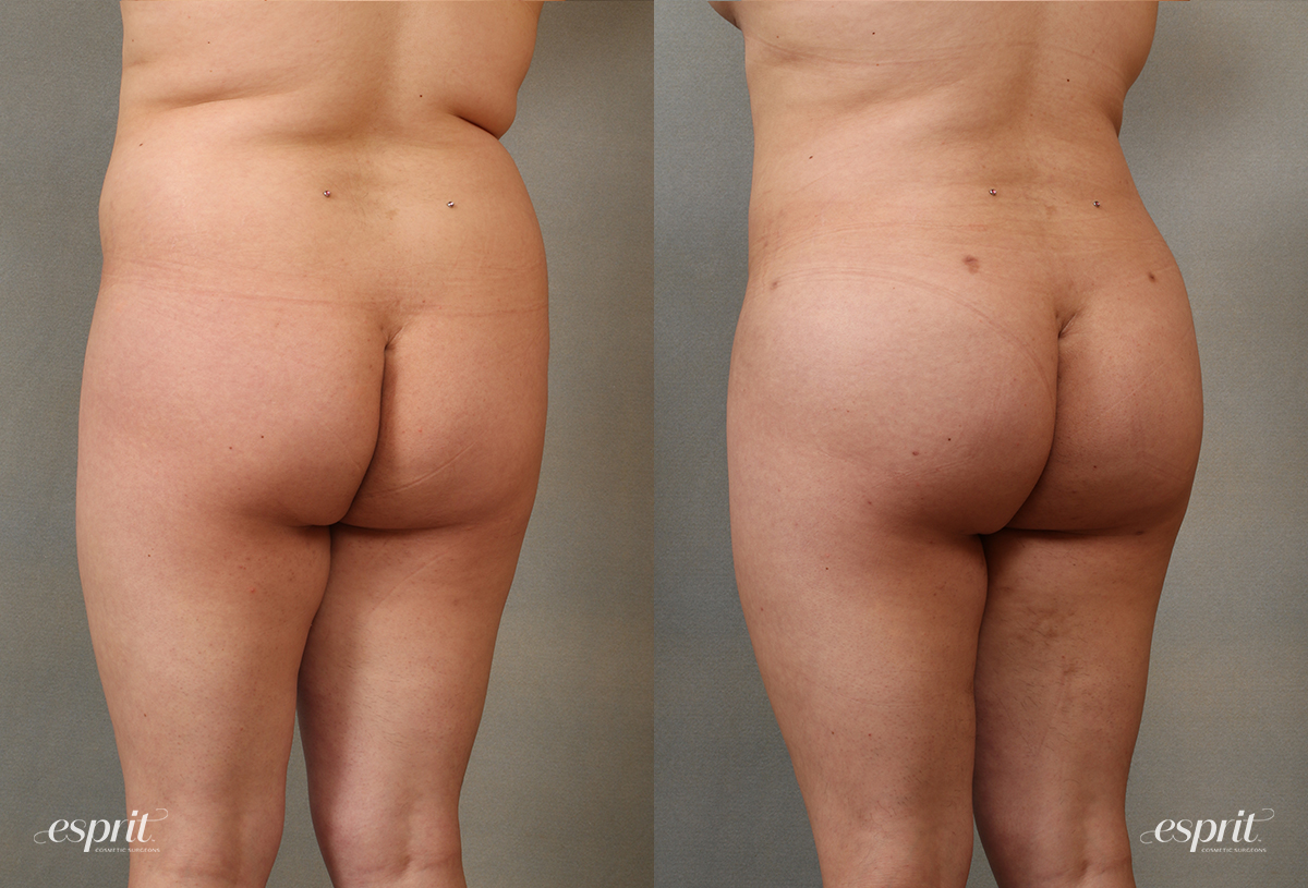 Case 2101 Before and After Rear Oblique View