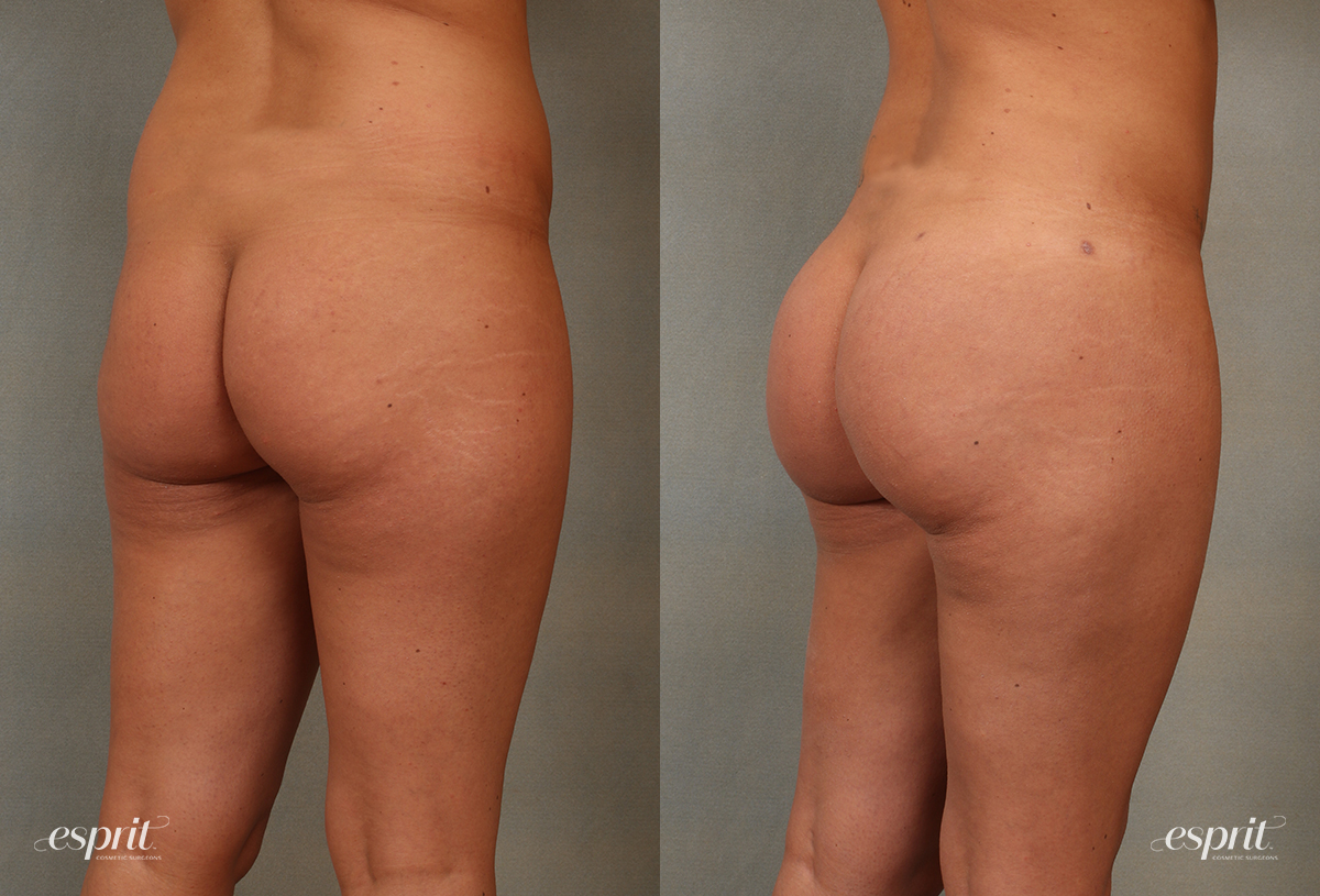 Case 2102 Before and After Rear Oblique View
