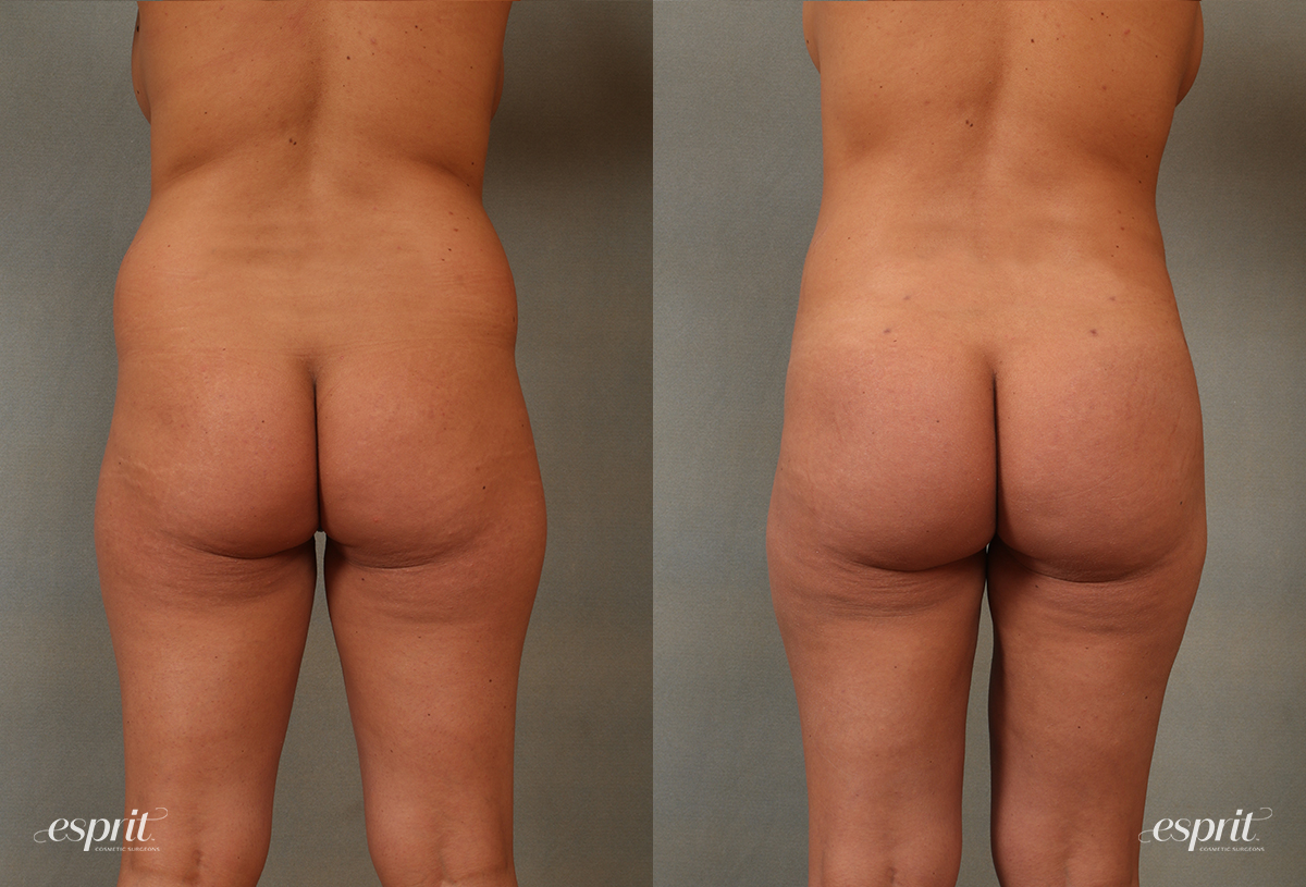Case 2102 Before and After Rear View