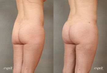 Case 2103 Before and After Rear Oblique View