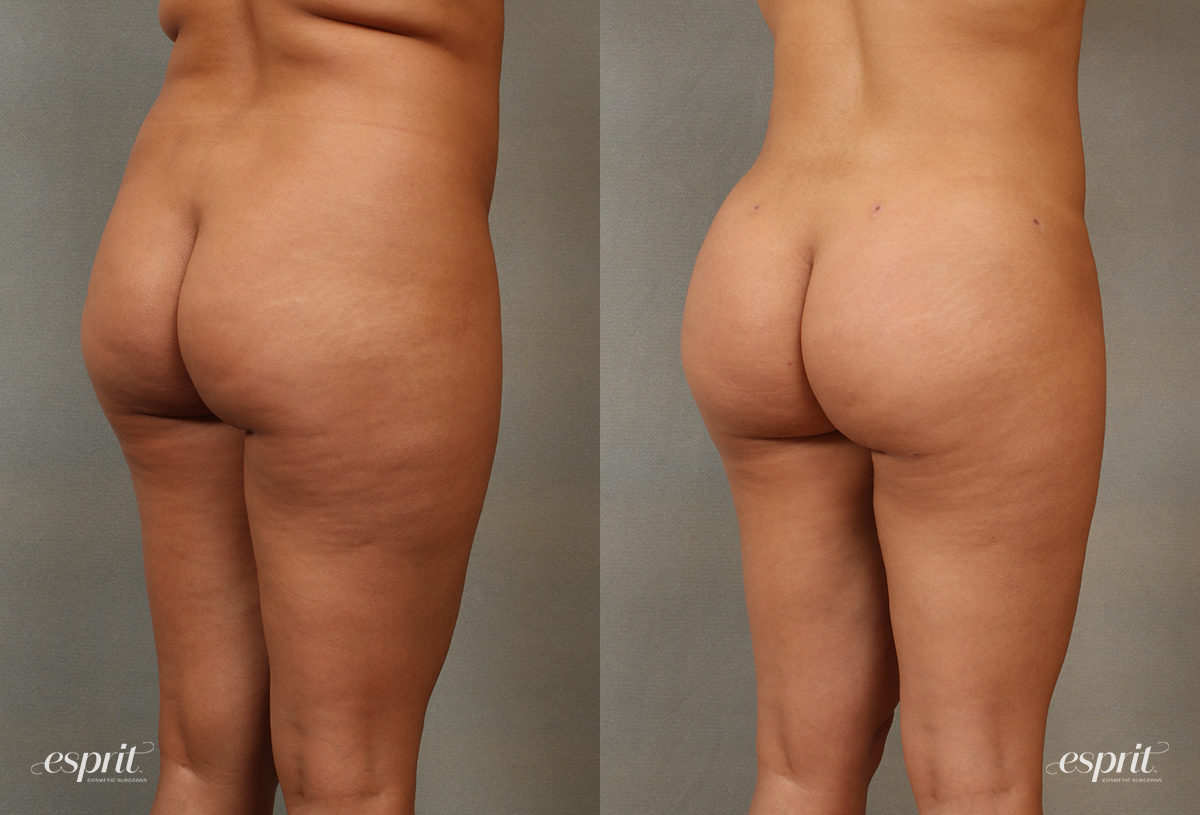 Case 2104 Before and After Rear Oblique View